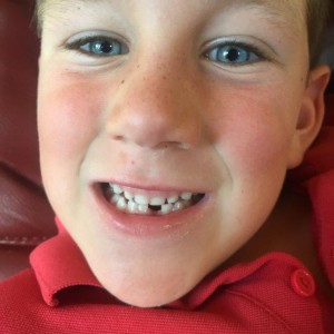 Jake van Workum  poses for the tooth fairy after an encounter with a crisp BERICA apple
